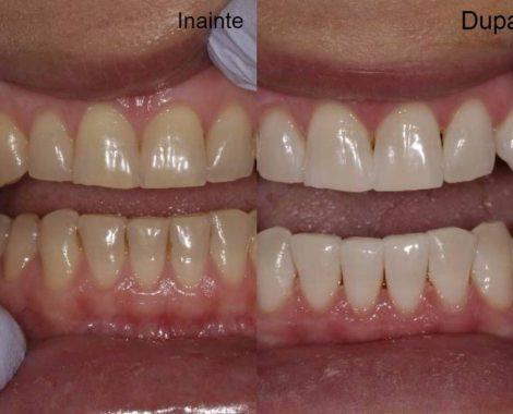 Cosmetica-dentara