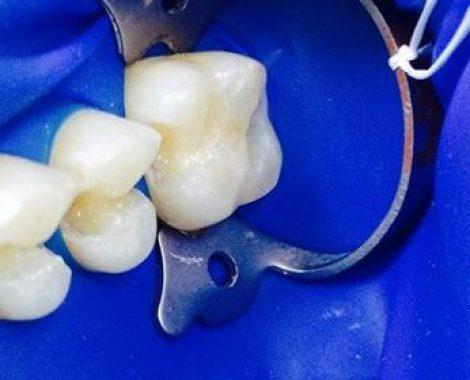 Odontoterapie